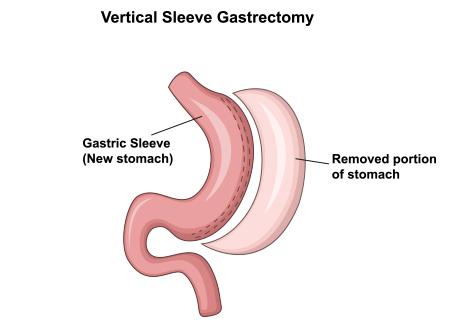Gastric Sleeve Procedure United Surgery Temecula Murrieta